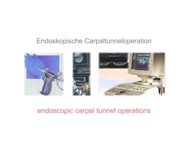Endoskopische Carpaltunneloperation